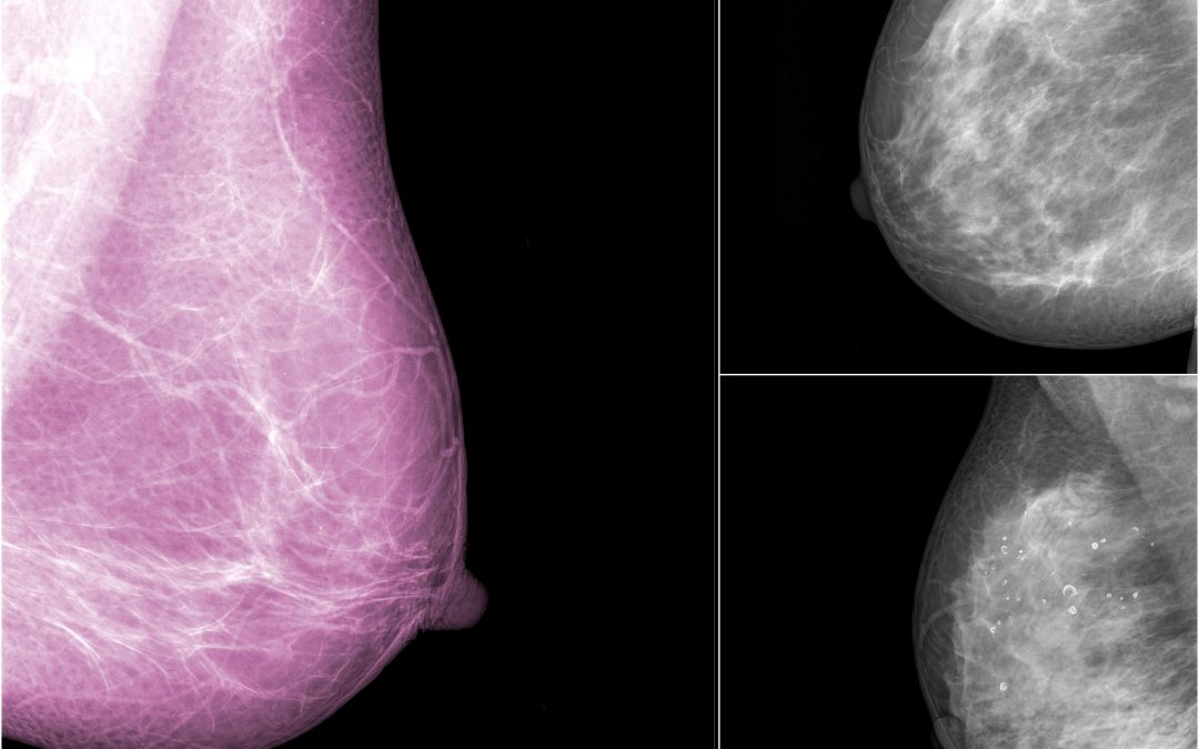 3-D Mammography – The Groundbreaking New Breast Screening Technology