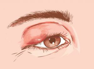What Are Styes and What Happens If You Have Them?