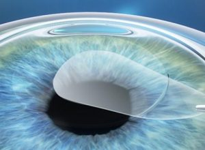 ReLEx SMILE – The Latest Innovation In Laser Eye Surgery Technology