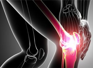 Why You're Experiencing Joint Pain
